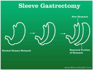 gastric-sleeve-mexico-health
