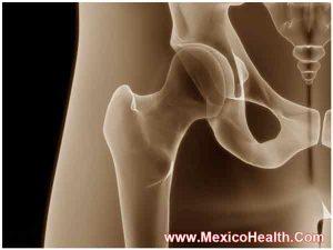 hip-replacement-in-ciudad-juarez