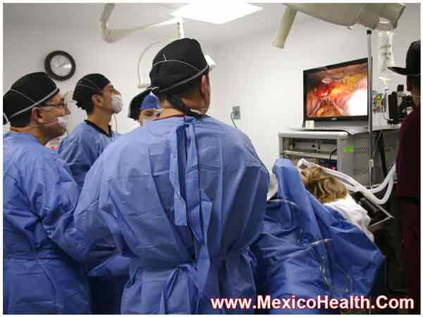 sleeve-gastrectomy-tijuana-mexico