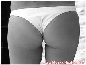 butt-augmentation-in-ciudad-juarez
