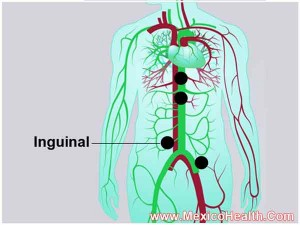 inguinal-hernia-surgery-in-mexico