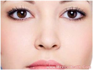 result-of-facelift-in-puerto-vallarta