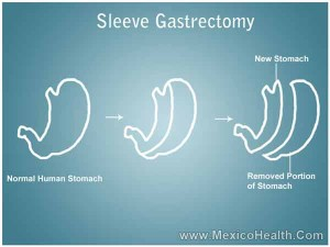 gastric-sleeve-in-cancun
