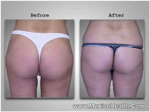 liposuction-in-tijuana-mexico