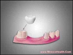 dental-crowns-and-bridges-los-algodones-mexico