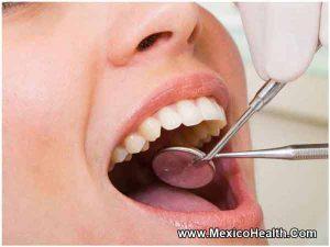 dental-tour-of-cancun-mexico
