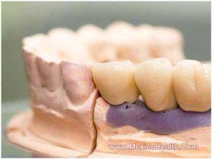 emax-teeth-crowns