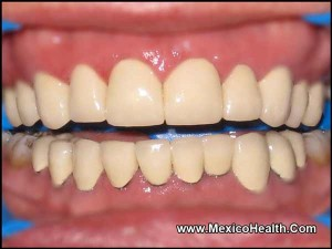 full-arch-teeth-replacement-in-mexico