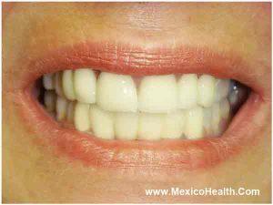 same-day-dentures