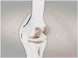 meniscus-repair