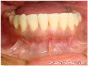 snap-on-dentures-in-mexico