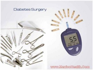 diabetes-surgery-in-tijuana-mexico