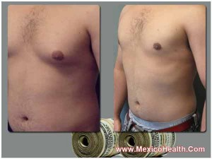 gynecomastia-surgery-cost-in-mexico