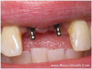 permanent-dentures-in-los-algodones-mexico_0_0