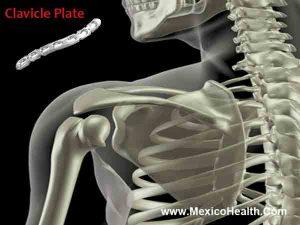 clavicle-repair