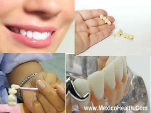 dental-bridges_0_0