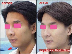 weak-chin-corrected-by-orthognathic-surgery