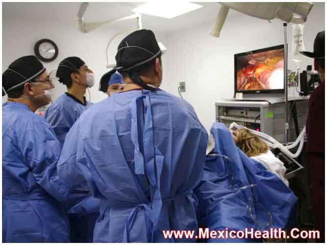 Sleeve Gastrectomy - Tijuana - Mexico