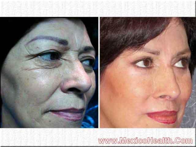Facial Cosmetic Surgery in Mexico