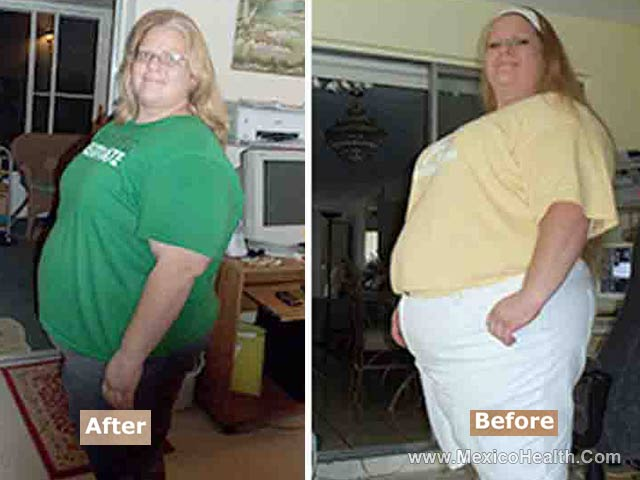 Before and After Gastric Sleeve Surgery in Mexico
