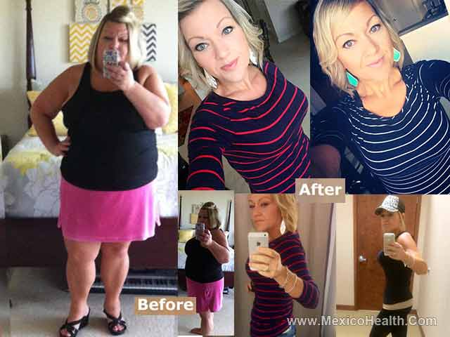 Before and After Bariatric Surgery in Mexico