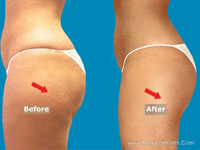 Butt Lift in Mexico - Before and After