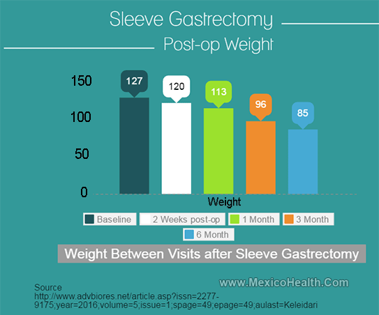 Weight Loss Progression - Gastric Sleeve Surgery